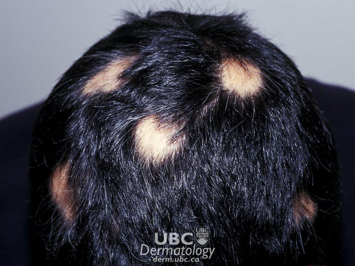hair disorders-2 alopecia areata